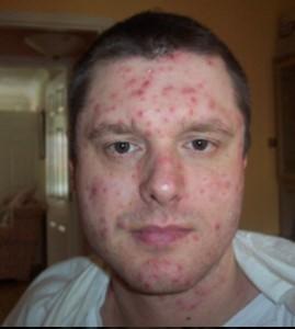 Симптоми при варицелата пъпки и обрив на лицето